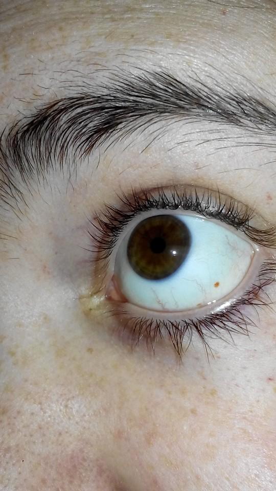 Bolsa Do Olho Vermelha : Gravida e pintinha vermelha no olho de m?e para