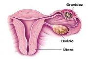 Ilustração gravidez ectópica