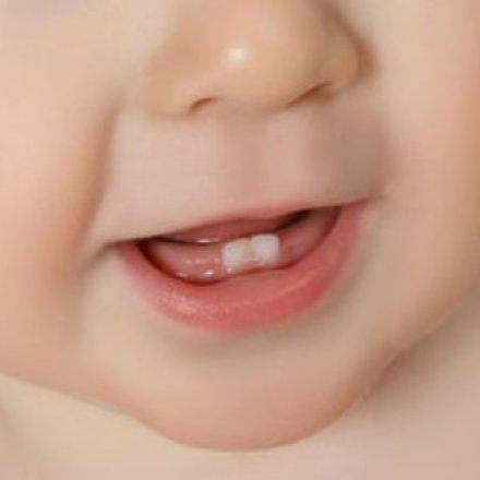 dentes_de_bebé