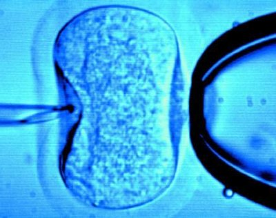 Fertilização in vitro